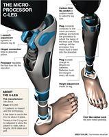 bioniczna noga