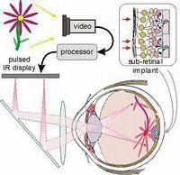 Zasada działania implantu siatkówki