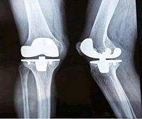 proteza kolana