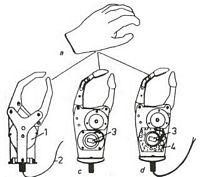 Proteza kończyny górnej
