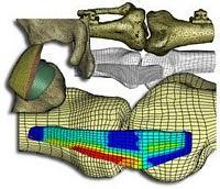biomechanika inżynieria biomedyczna